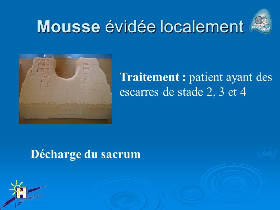 Mousse évidée localement Décharge du sacrum Traitement : patient ayant des escarres de stade 2, 3 et 4