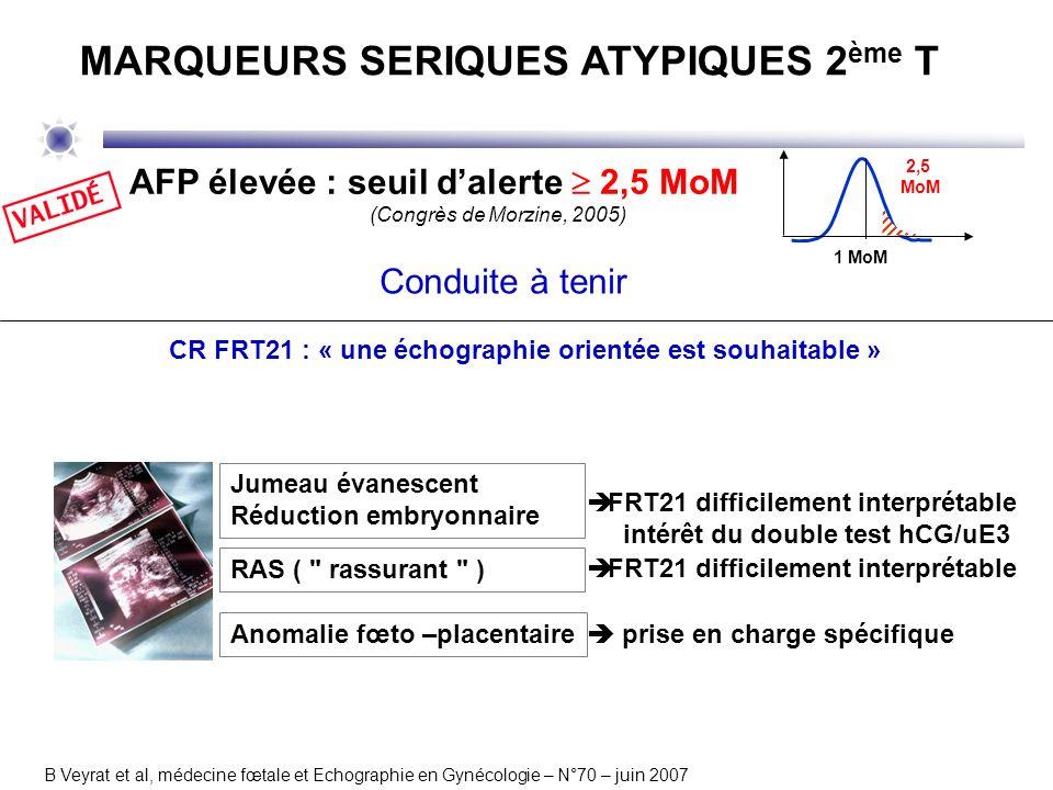 CR FRT21 : « une échographie orientée est souhaitable » B Veyrat et al, médecine fœtale et Echographie en Gynécologie – N°70 – juin 2007 AFP élevée :