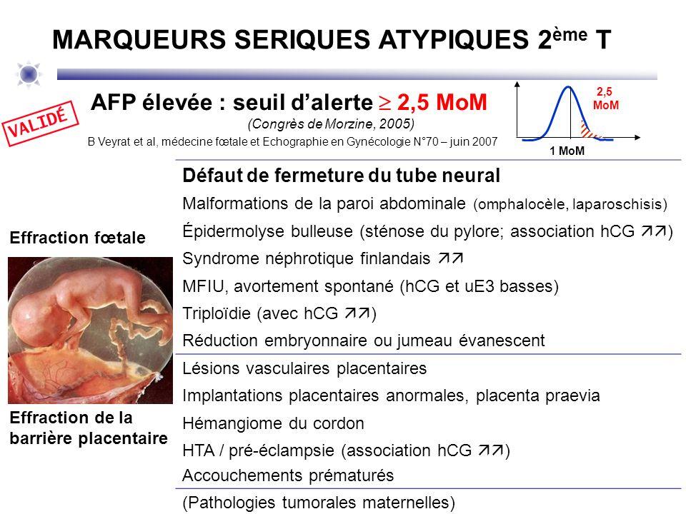 AFP < 0,2 MoM (< 0,03%) à signaler après vérification AFP dosable : souvent risque accru : Caryotype fœtal à discuter.