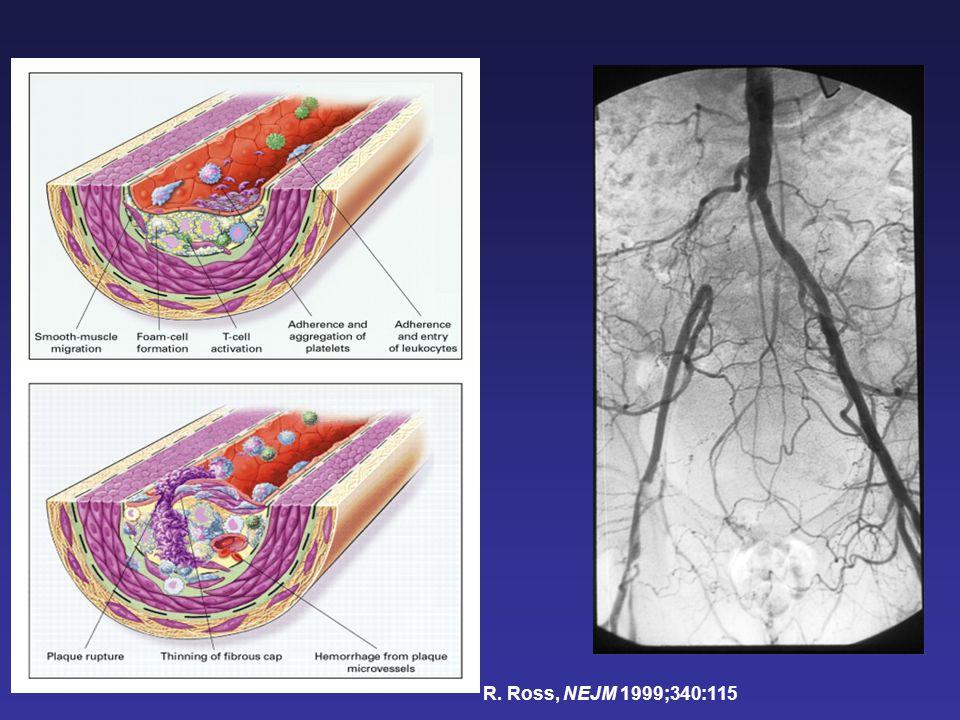 Méta-analyse « PFA-100 TM CEPI et événements CV chez les patients sous aspirine »