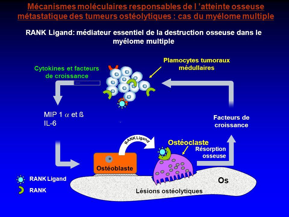 Mécanismes moléculaires responsables de l atteinte osseuse métastatique des tumeurs ostéolytiques : cas du myélome multiple Os RANK RANK Ligand Ostéoc