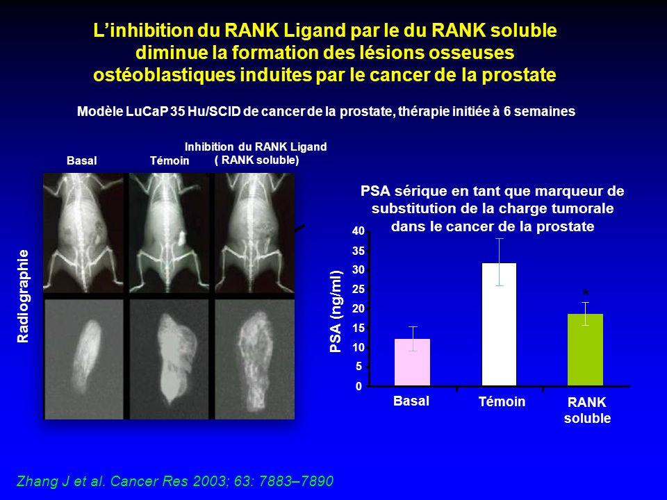 Linhibition du RANK Ligand par le du RANK soluble diminue la formation des lésions osseuses ostéoblastiques induites par le cancer de la prostate Basa