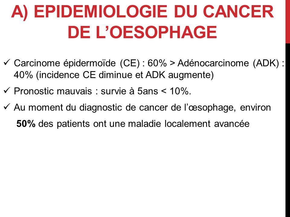A) EPIDEMIOLOGIE DU CANCER DE LOESOPHAGE Carcinome épidermoïde (CE) : 60% > Adénocarcinome (ADK) : 40% (incidence CE diminue et ADK augmente) Pronosti