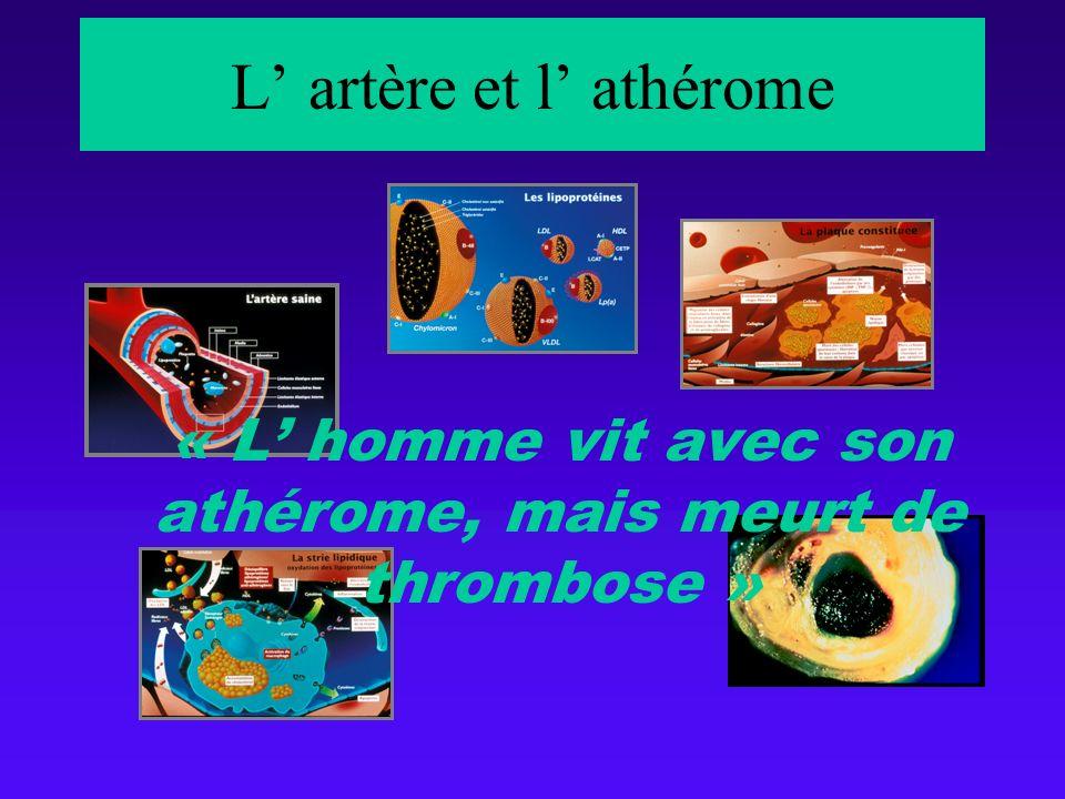 L artère et l athérome « L homme vit avec son athérome, mais meurt de thrombose »