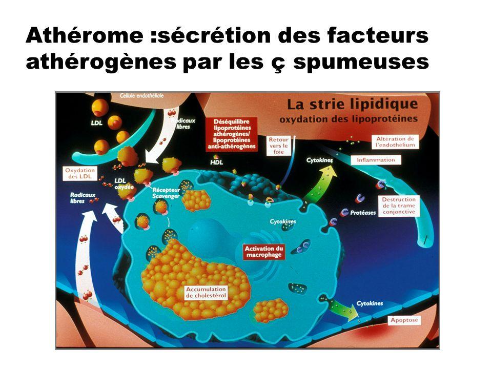Athérome :sécrétion des facteurs athérogènes par les ç spumeuses