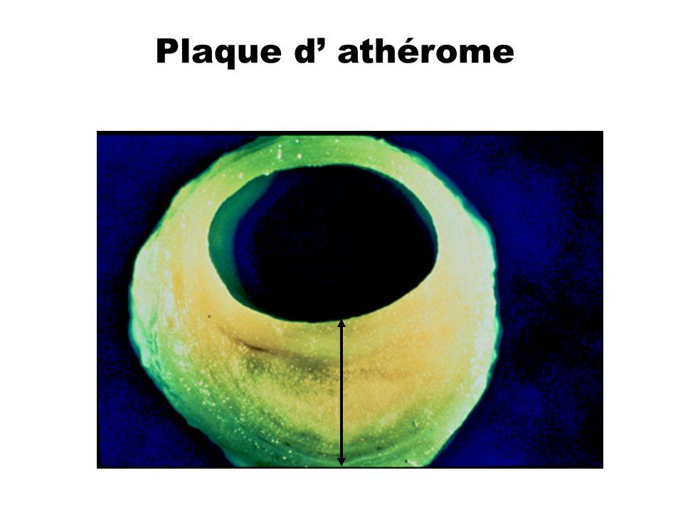 Plaque d athérome
