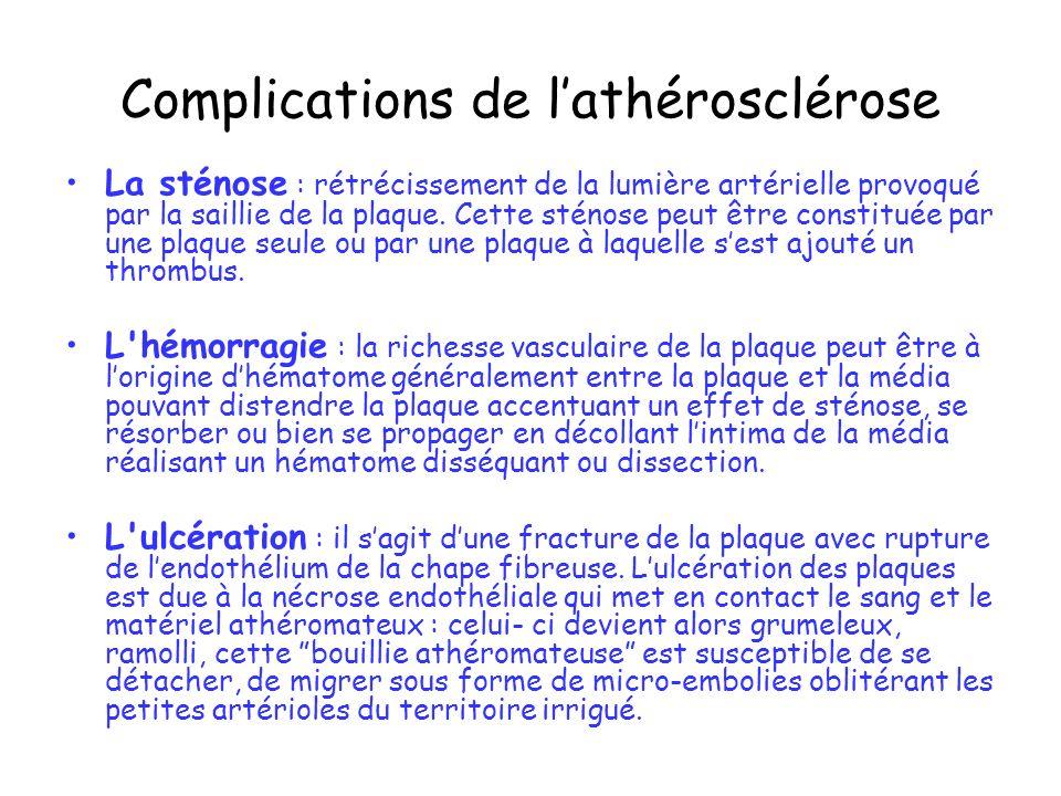 Complications de lathérosclérose La sténose : rétrécissement de la lumière artérielle provoqué par la saillie de la plaque. Cette sténose peut être co
