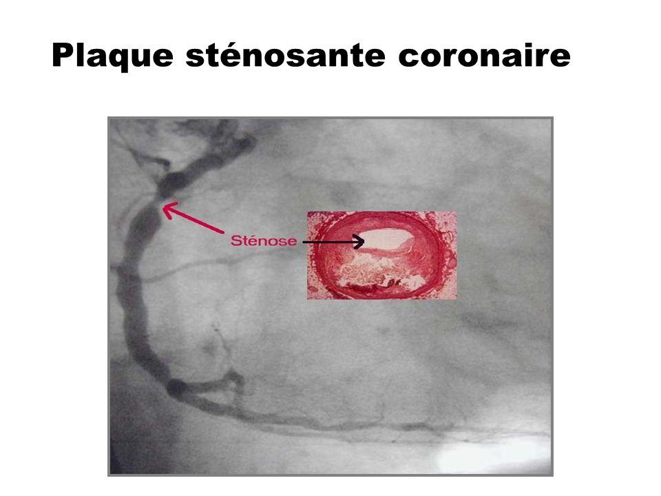 Plaque sténosante coronaire