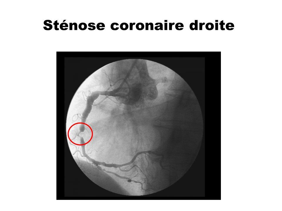 Sténose coronaire droite