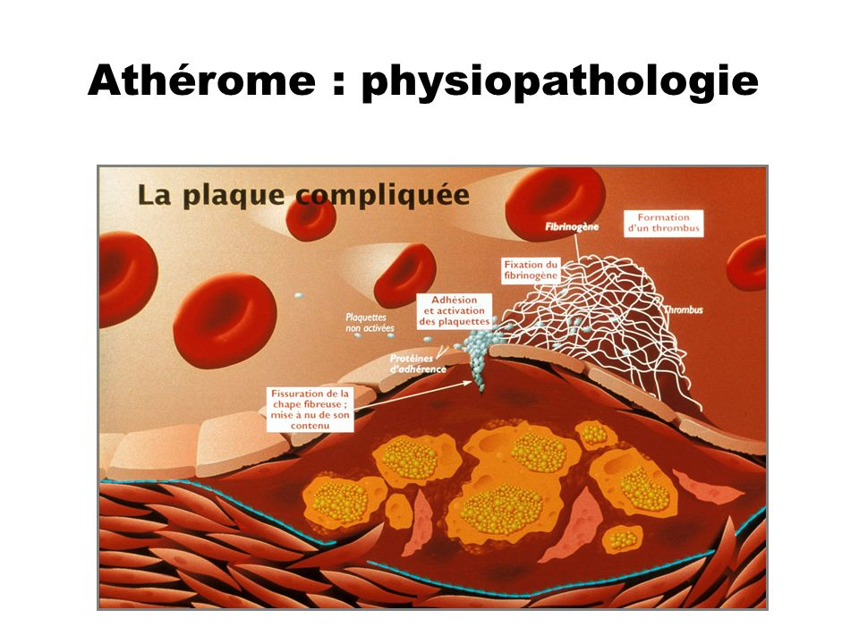 Athérome : physiopathologie