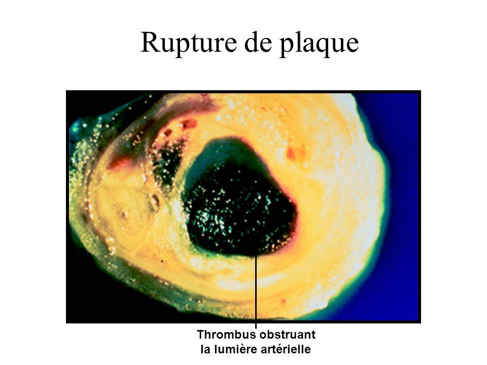 Thrombus obstruant la lumière artérielle Rupture de plaque