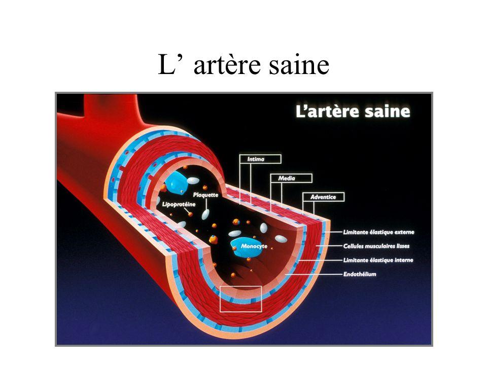 Les acteurs mis en jeu dans l athérosclérose –acteurs cellulaires cellules endotheliales et musculaires lisses plaquettes leucocytes monocytes –constituants de la paroi artérielle : tissu conjonctif –éléments du sang : lipoprotéines
