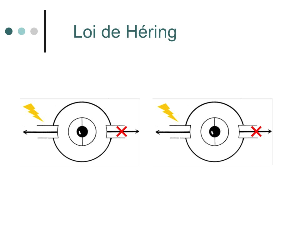 Droit inférieur (III) Laxe visuel forme un angle de 23° avec le plan daction du muscle.