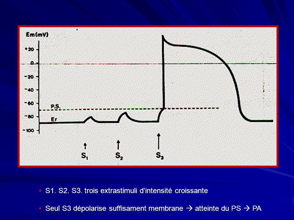 S1. S2. S3. trois extrastimuli dintensité croissante Seul S3 dépolarise suffisament membrane atteinte du PS PA