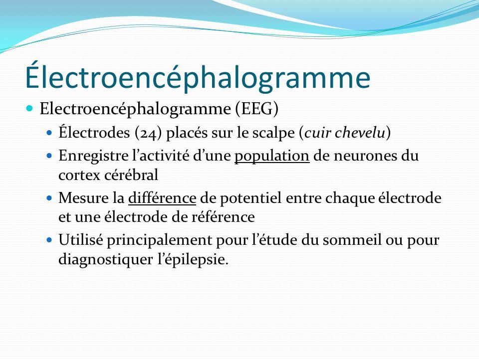 Électroencéphalogramme Electroencéphalogramme (EEG) Électrodes (24) placés sur le scalpe (cuir chevelu) Enregistre lactivité dune population de neuron