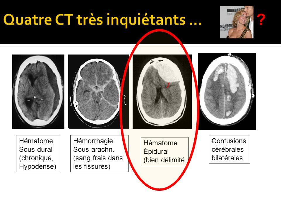Hématome Sous-dural (chronique, Hypodense) Hémorrhagie Sous-arachn. (sang frais dans les fissures) Hématome Épidural (bien délimité Contusions cérébra
