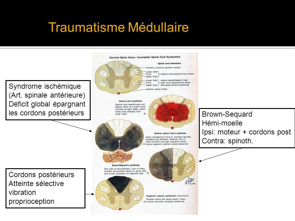 Traumatisme Médullaire Syndrome ischémique (Art. spinale antérieure) Déficit global épargnant les cordons postérieurs Brown-Sequard Hémi-moelle Ipsi: