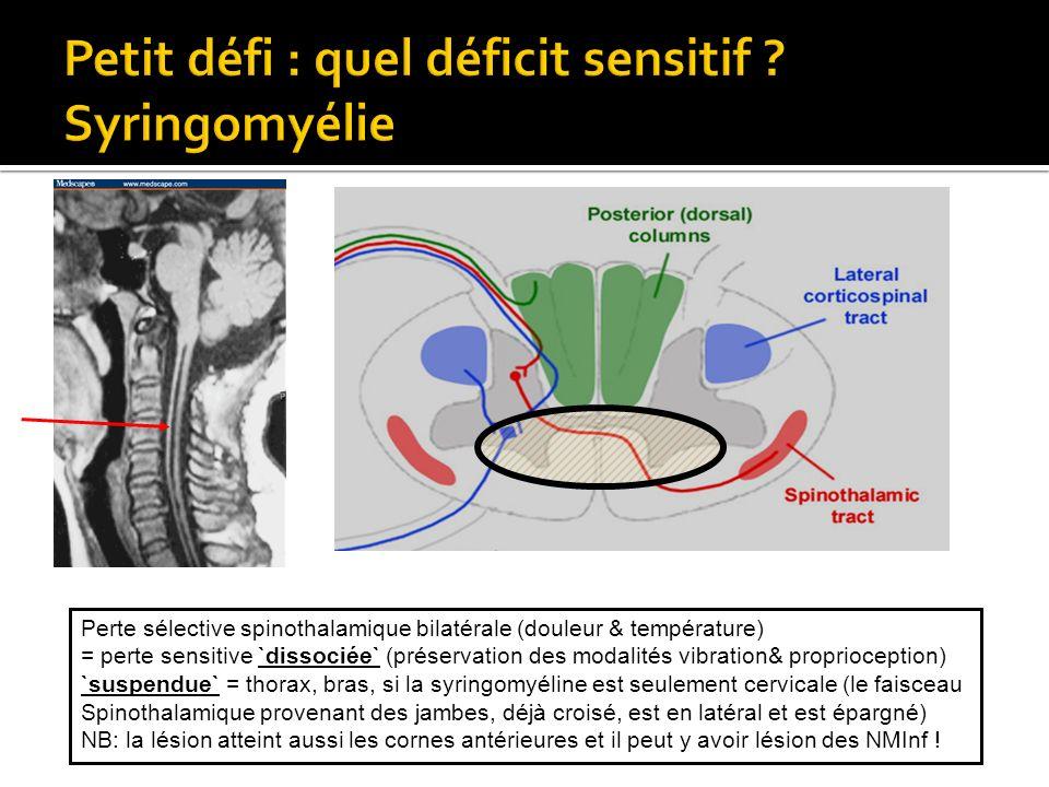 Perte sélective spinothalamique bilatérale (douleur & température) = perte sensitive `dissociée` (préservation des modalités vibration& proprioception
