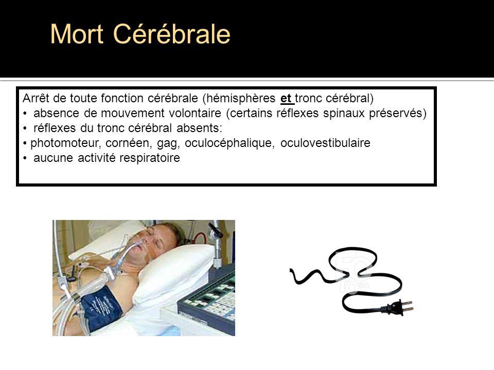 Mort Cérébrale Arrêt de toute fonction cérébrale (hémisphères et tronc cérébral) absence de mouvement volontaire (certains réflexes spinaux préservés)
