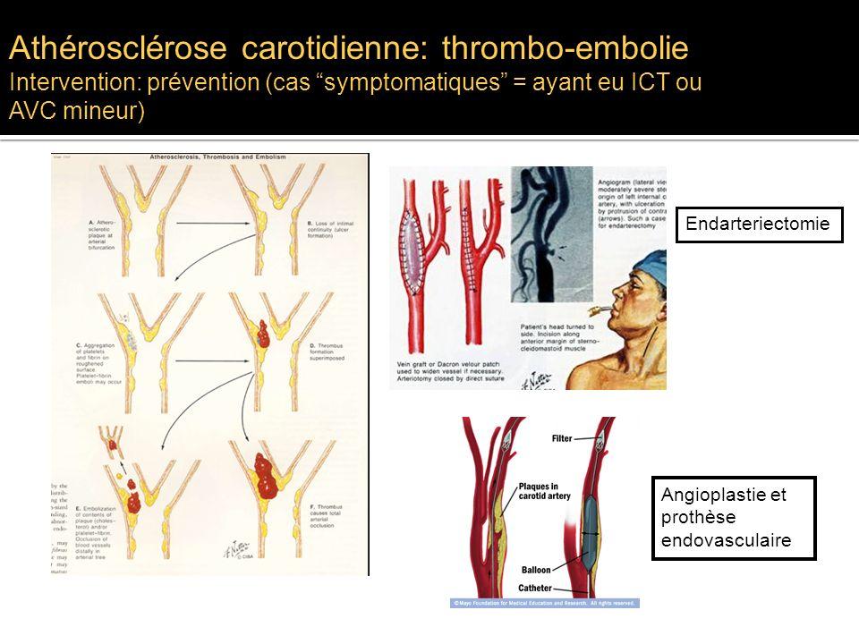 Athérosclérose carotidienne: thrombo-embolie Intervention: prévention (cas symptomatiques = ayant eu ICT ou AVC mineur) Endarteriectomie Angioplastie