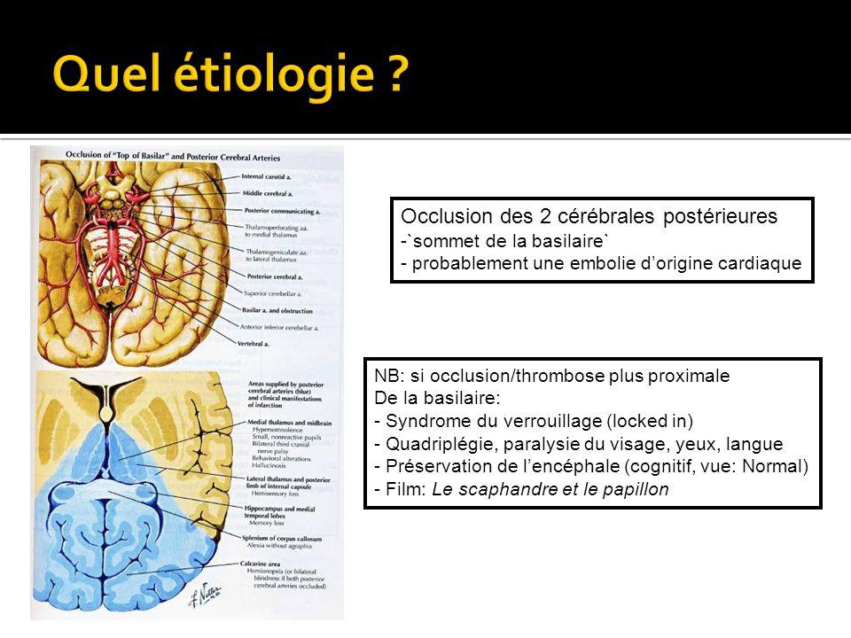 Occlusion des 2 cérébrales postérieures -`sommet de la basilaire` - probablement une embolie dorigine cardiaque NB: si occlusion/thrombose plus proxim