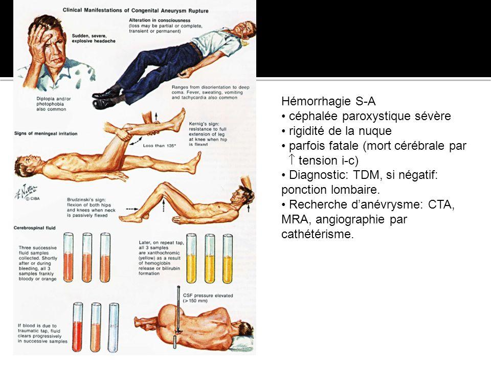 Hémorrhagie S-A céphalée paroxystique sévère rigidité de la nuque parfois fatale (mort cérébrale par tension i-c) Diagnostic: TDM, si négatif: ponctio