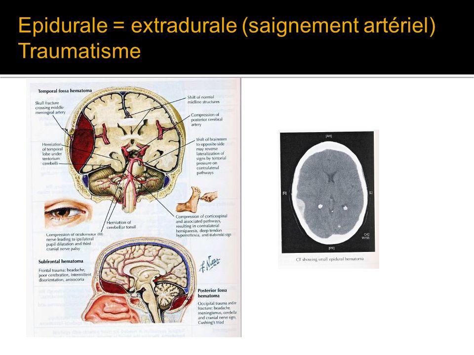 Epidurale = extradurale (saignement artériel) Traumatisme