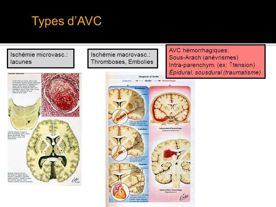 Territoires Vasculaires Circulation Antérieure Cerebrale antérieure: regions médiales – membre inférieur (déficit mot/sens) Cerebrale postérieure: cortex occipital & thalamus (hémianopsie, amnésie) Cérébrale moyenne: cortex latéral (face/ bras), capsule interne (hemicorps !), radiations optiques (hémianopsie)