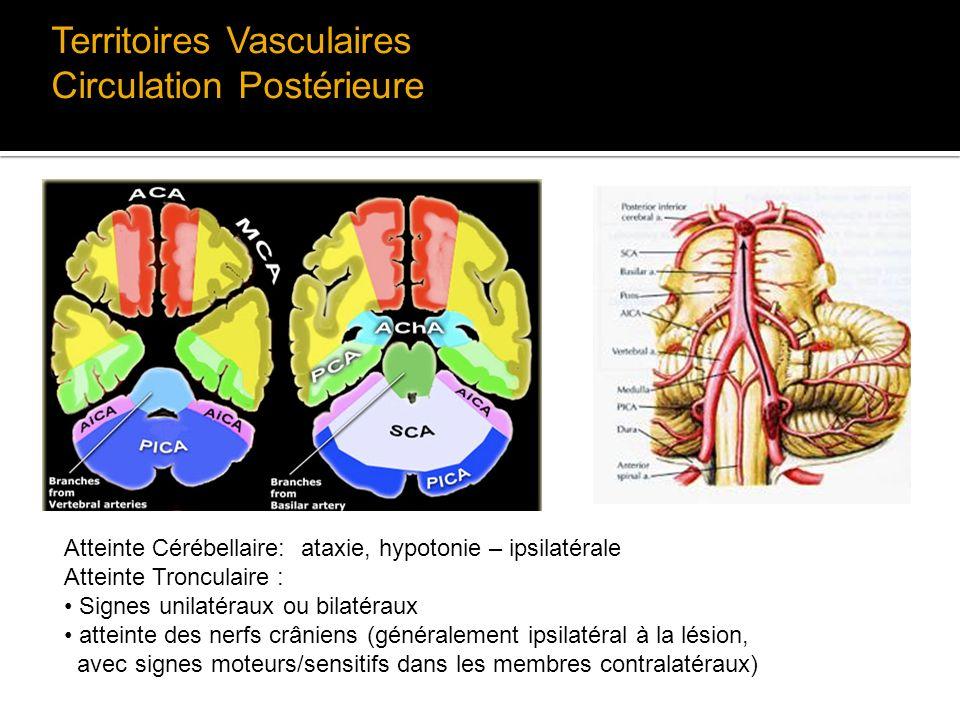 Territoires Vasculaires Circulation Postérieure Atteinte Cérébellaire: ataxie, hypotonie – ipsilatérale Atteinte Tronculaire : Signes unilatéraux ou b