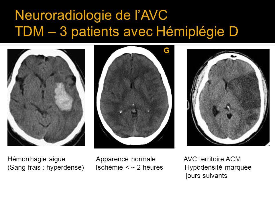 Neuroradiologie de lAVC TDM – 3 patients avec Hémiplégie D G Hémorrhagie aigue Apparence normale AVC territoire ACM (Sang frais : hyperdense) Ischémie