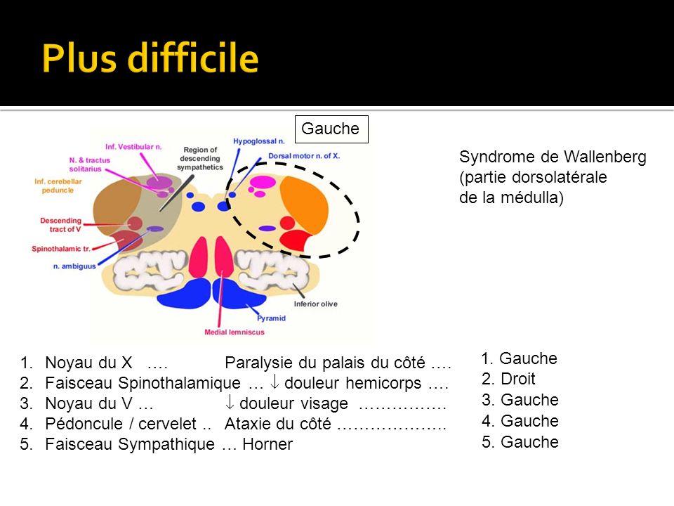 1.Noyau du X …. Paralysie du palais du côté …. 2.Faisceau Spinothalamique … douleur hemicorps …. 3.Noyau du V … douleur visage ……………. 4.Pédoncule / ce