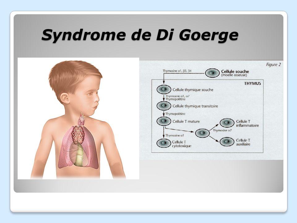 VRAI ou FAUX ? Le thymus est un organe du système immunitaire