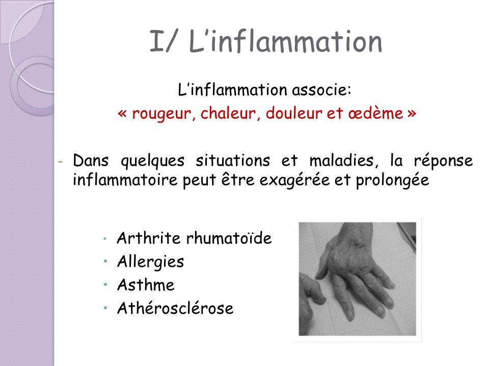 I/ Linflammation Linflammation associe: « rougeur, chaleur, douleur et œdème » - Dans quelques situations et maladies, la réponse inflammatoire peut ê