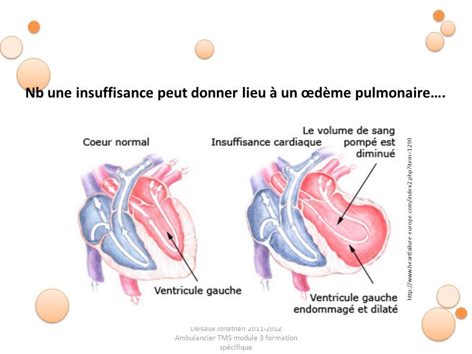 Delsaux Jonathan 2011-2012 Ambulancier TMS module 3 formation spécifique Nb une insuffisance peut donner lieu à un œdème pulmonaire…. http://www.heart