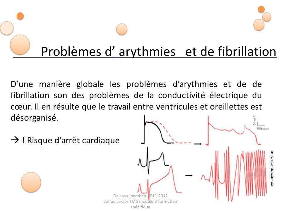 Delsaux Jonathan 2011-2012 Ambulancier TMS module 3 formation spécifique Problèmes d arythmies et de fibrillation Dune manière globale les problèmes d