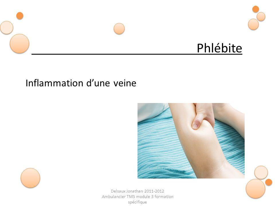 Delsaux Jonathan 2011-2012 Ambulancier TMS module 3 formation spécifique Phlébite Inflammation dune veine