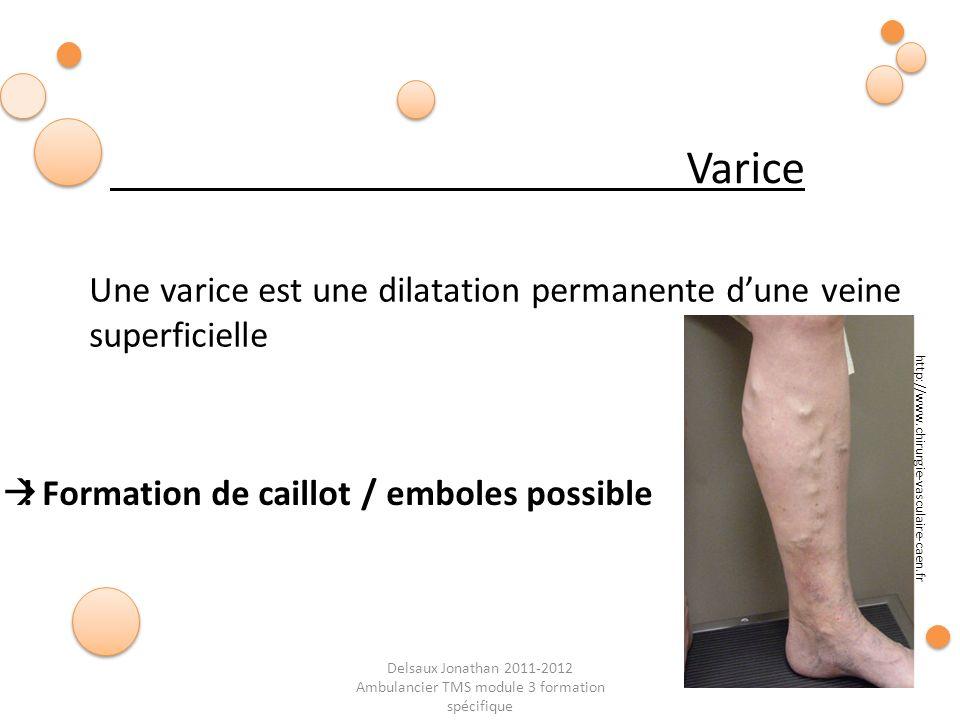 Delsaux Jonathan 2011-2012 Ambulancier TMS module 3 formation spécifique Une varice est une dilatation permanente dune veine superficielle Varice http