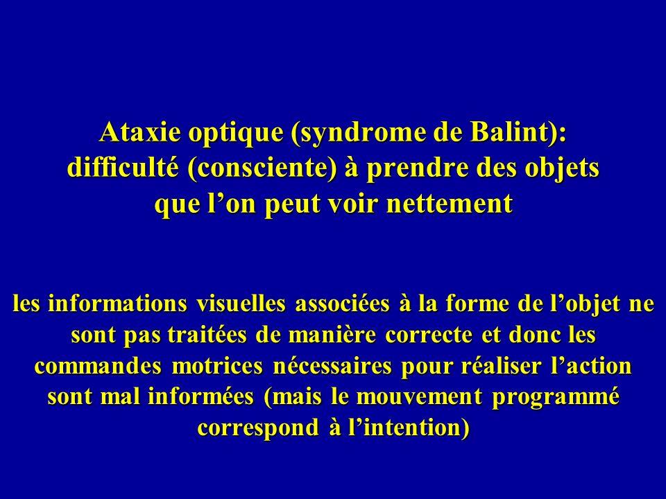 Ataxie optique (syndrome de Balint): difficulté (consciente) à prendre des objets que lon peut voir nettement les informations visuelles associées à l