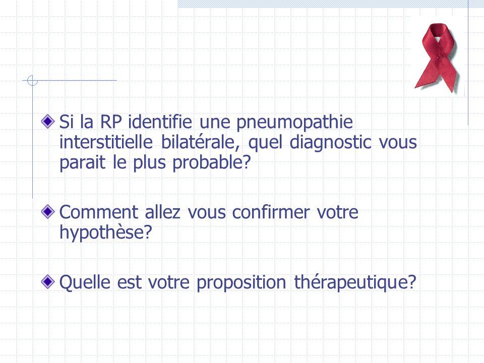 Si la RP identifie une pneumopathie interstitielle bilatérale, quel diagnostic vous parait le plus probable.