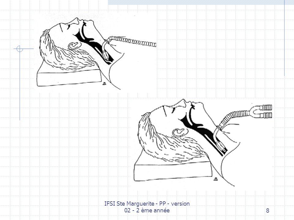 IFSI Ste Marguerite - PP - version 02 - 2 ème année28 Cordon de fixation ou lac Ballon interne