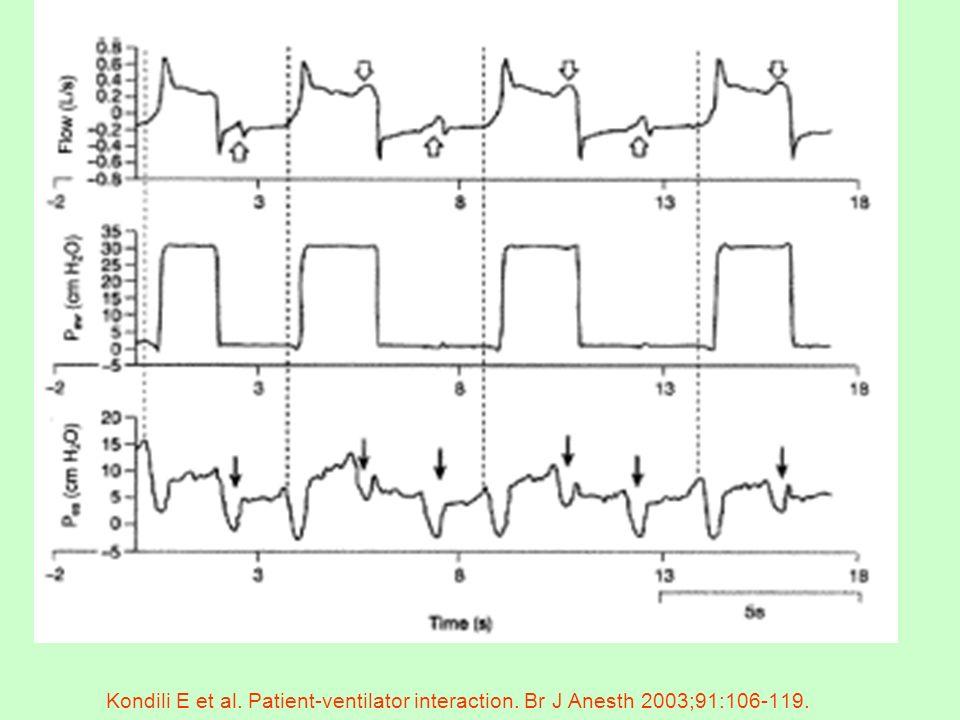 Kondili E et al. Patient-ventilator interaction. Br J Anesth 2003;91:106-119.