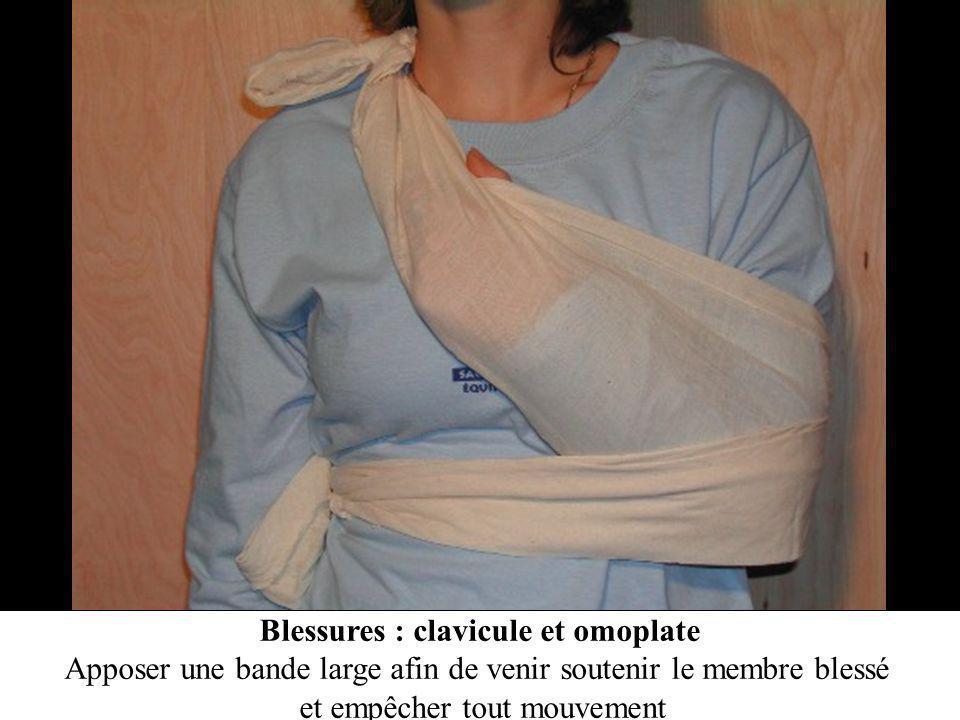 Blessures : clavicule et omoplate Apposer une bande large afin de venir soutenir le membre blessé et empêcher tout mouvement