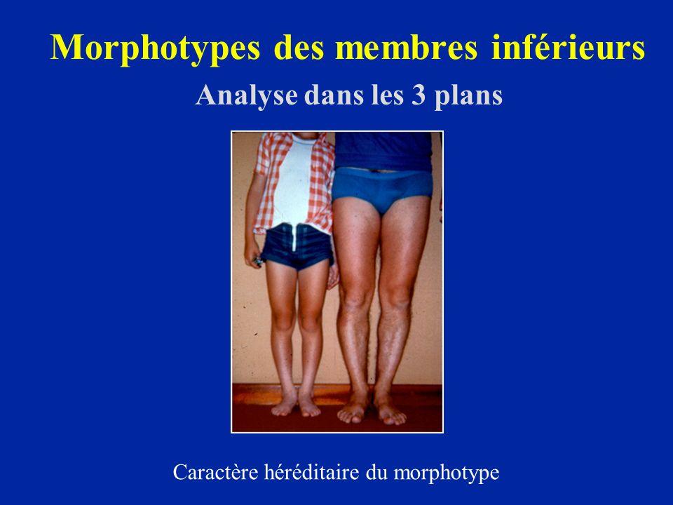 Morphotype frontal Varus - valgus Examen clinique : pieds joints écart inter genoux ou inter chevilles