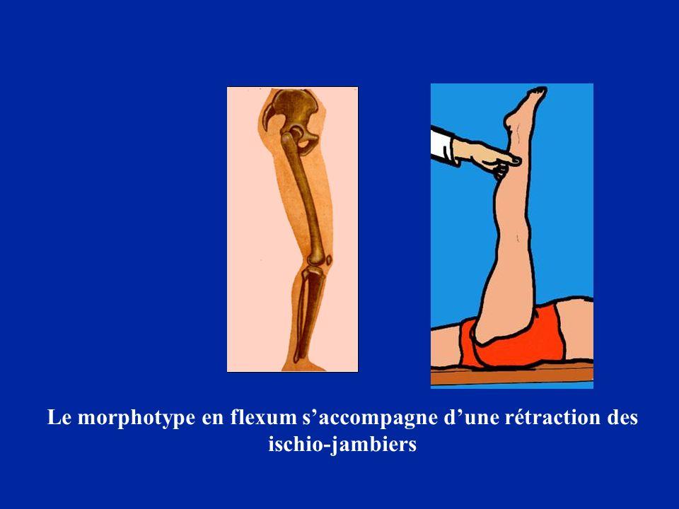 Le morphotype en flexum saccompagne dune rétraction des ischio-jambiers