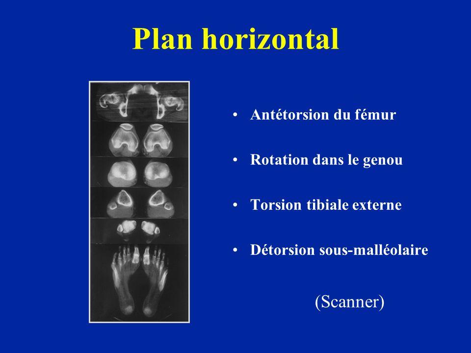 Plan horizontal Antétorsion du fémur Rotation dans le genou Torsion tibiale externe Détorsion sous-malléolaire (Scanner)