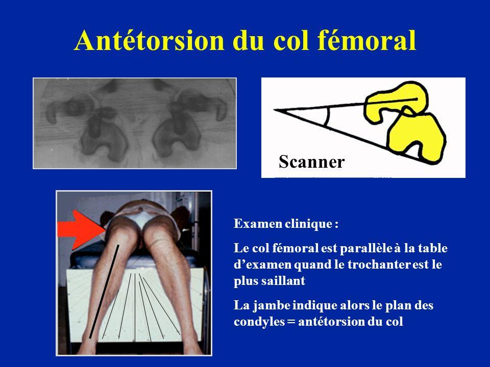 Antétorsion du col fémoral Scanner Examen clinique : Le col fémoral est parallèle à la table dexamen quand le trochanter est le plus saillant La jambe