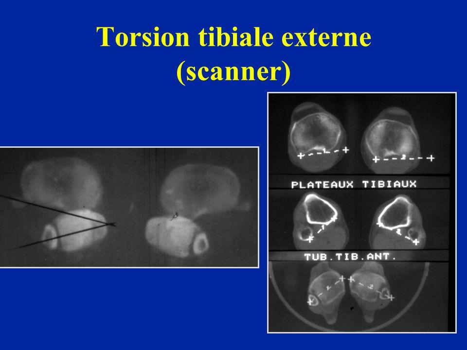 Torsion tibiale externe (scanner)