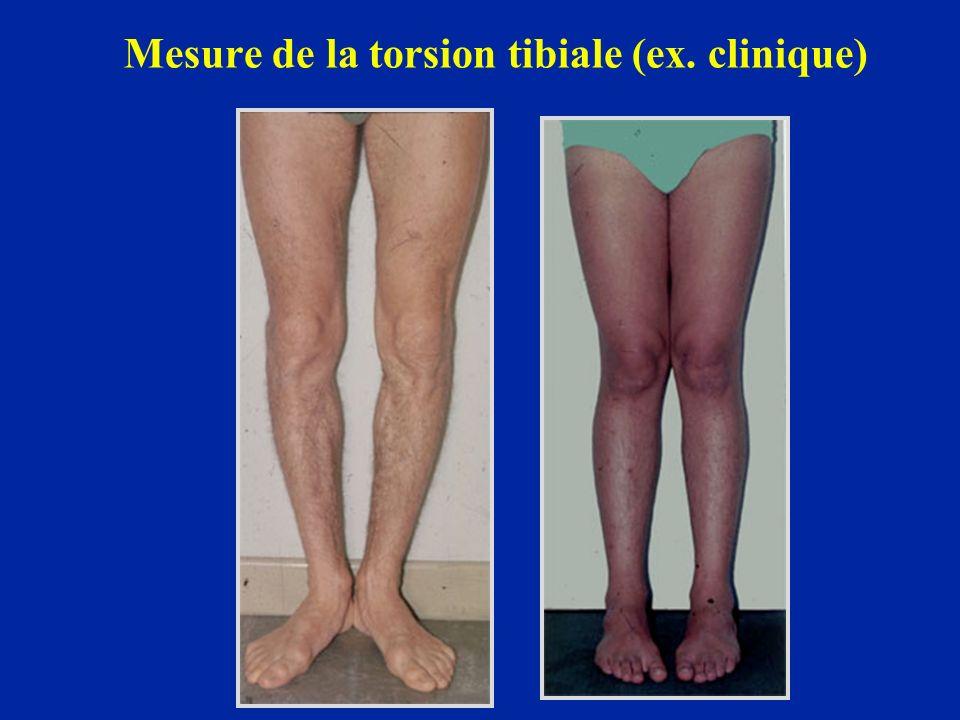 Mesure de la torsion tibiale (ex. clinique)