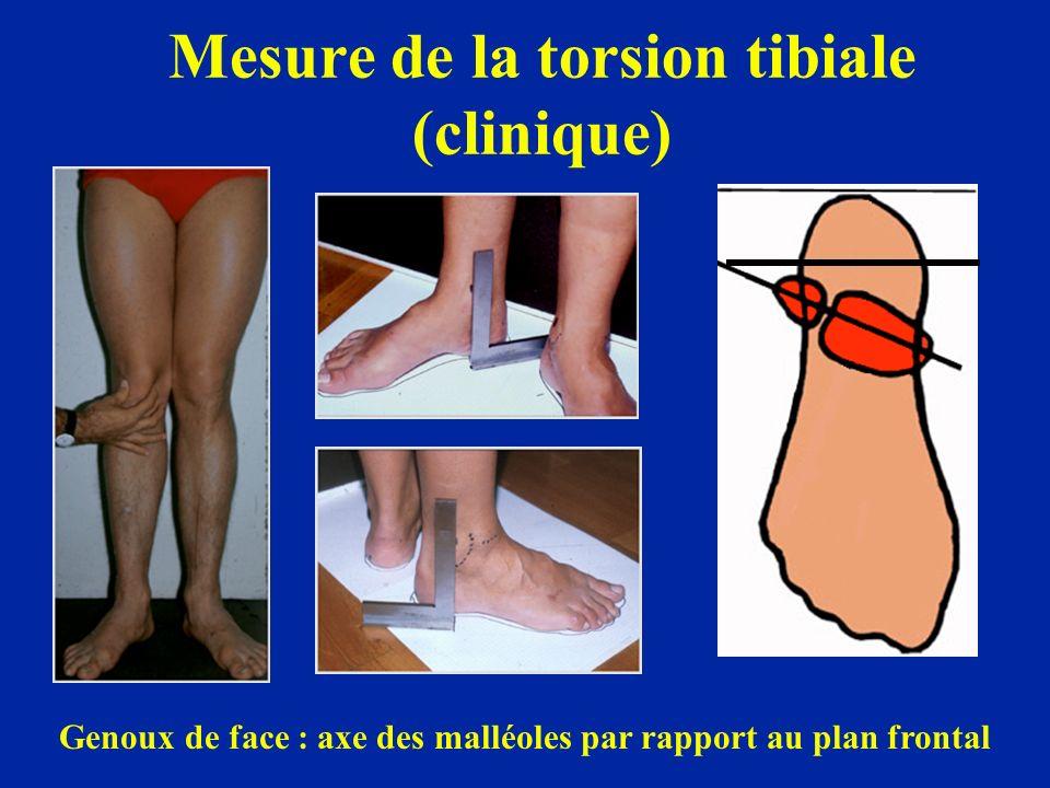 Mesure de la torsion tibiale (clinique) Genoux de face : axe des malléoles par rapport au plan frontal