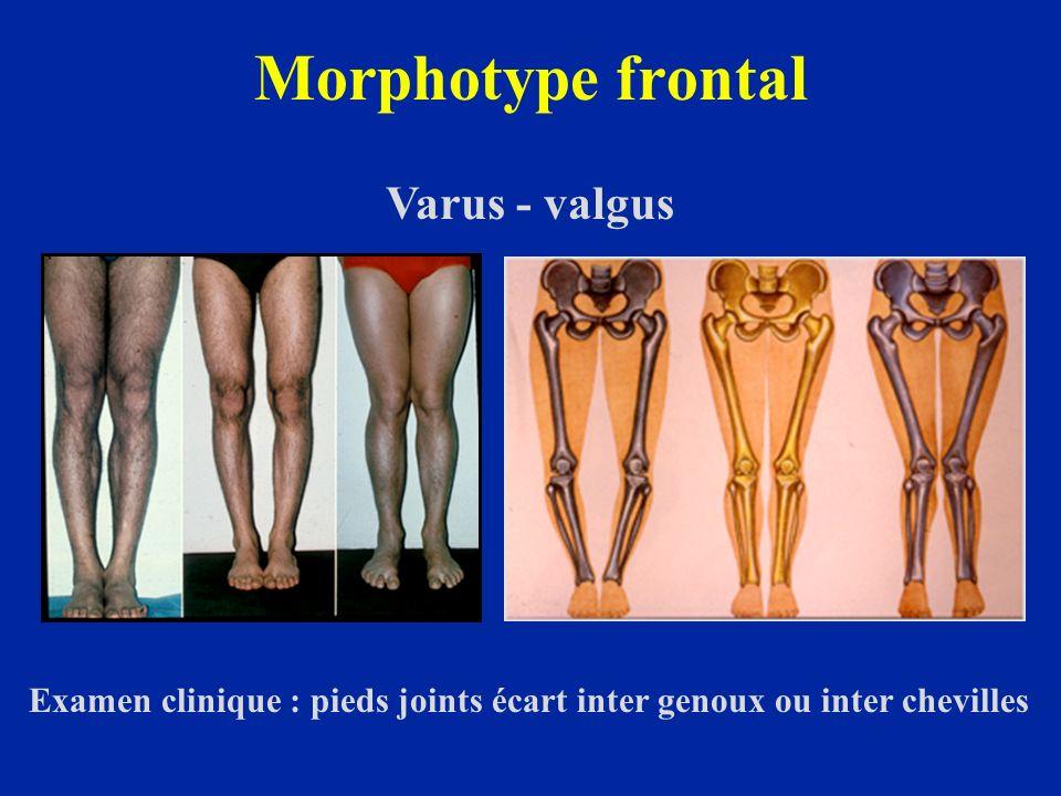 Morphotypes selon le sexe 20%60%10%